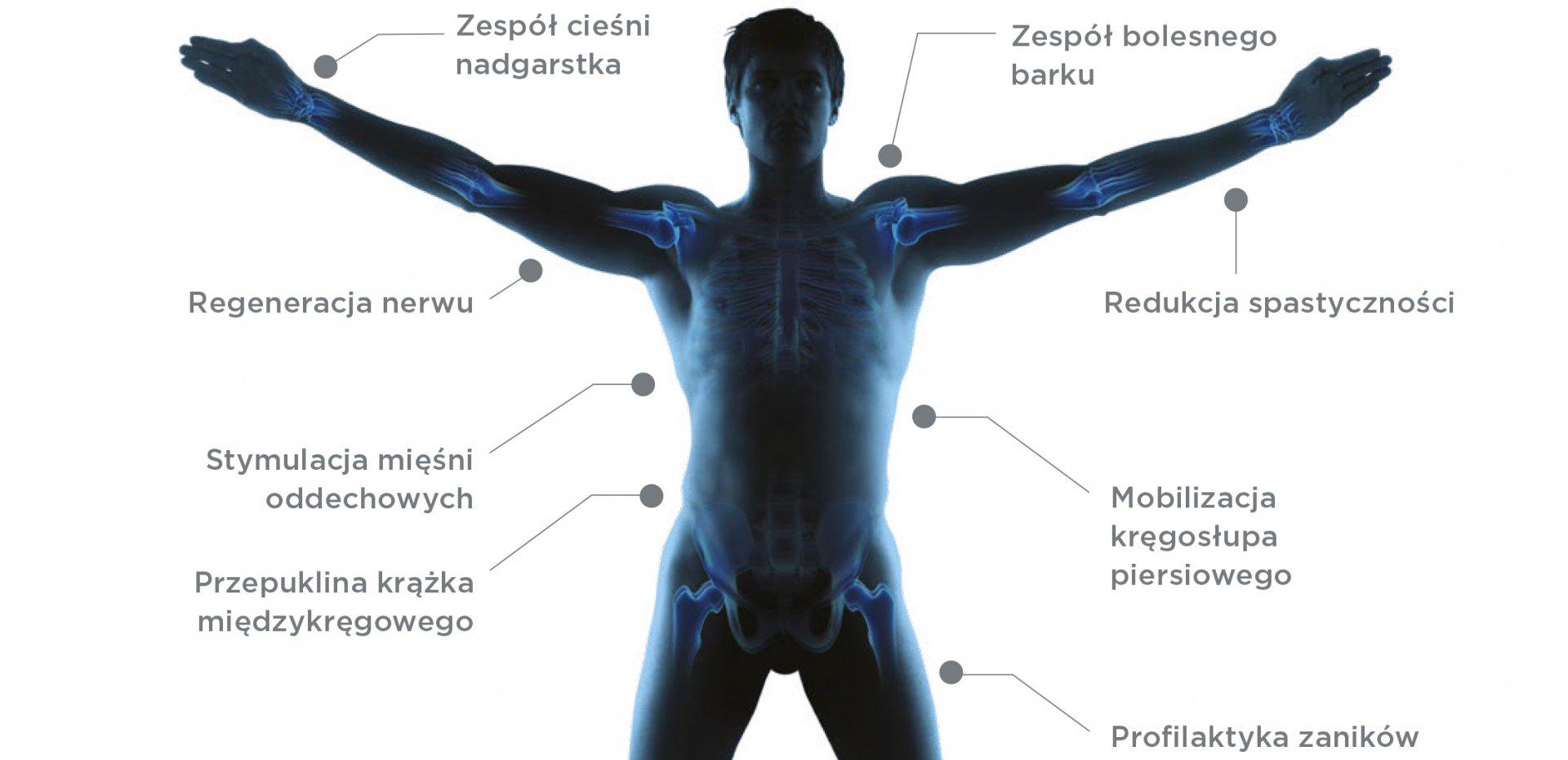 Profilaktyka kręgosłupa<br>3 noce